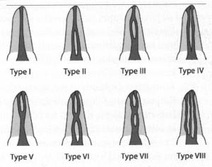 Dantų šaknų kanalų tipai
