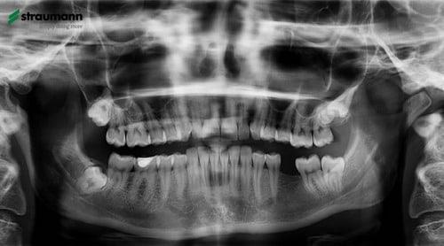 Implantai - rentgeno nuotrauka