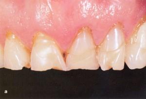 Stipriai išreikštas viršutinio žandikaulio priekinių dantų nudilimas