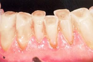 Stipriai išreikštas apatinio žandikaulio priekinių dantų nudilimas